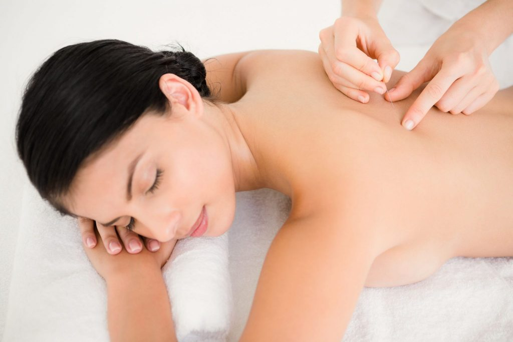 woman in an acupuncture